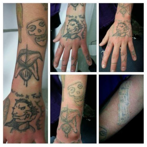 Tattoo Removal in Cheyenne, WY   Laser Tattoo Removal